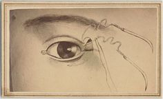 [Illustration of suture near eyelid.] From New York Public Library Digital Collections.
