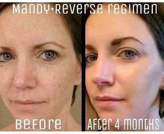 Clean the slate!! Mandy's results are just THAT!! Her skin is RADIANT!! ✨Results like THIS is WHY Rodan+Fields is now the 2nd LARGEST & the FASTEST Growing skincare company in the US!! The Reverse Regimen is AMAZING!! Say goodbye to brown spots, Melasma, dull & uneven skin tone with REVERSE! You'll be THRILLED with your results! With our 60 Day empty bottle Money Back Guarantee ~ you have nothing to lose except those spots and wrinkles!