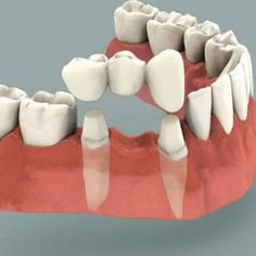 Dental bridges also known as fixed partial denture, literally bridge the gap created by one or more missing teeth. Tooth bridge cost in thangams dental implant center, Chennai is very affordable. Dental Surgery, Dental Implants, Dental Hygienist, Dental Assistant, Tooth Bridge, Dental Bridge Cost, Veneers Teeth, Affordable Dental, Restorative Dentistry