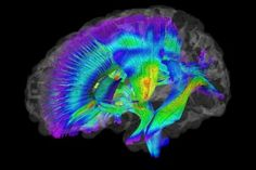 Testing the B-Spot: An innovative test, known as fractional anisotropy, measures the density of white matter, the part of brain that is rich in nerve fibers and makes up the major neural pathways that connect various regions of the brain.
