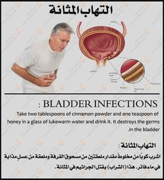 BOUCHRAFATI: BLADDERINFECTIONS Health Facts, Health Diet, Health And Nutrition, Health Care, Health And Fitness Expo, Health And Wellbeing, Fitness Nutrition, Islam Facts, Honey And Cinnamon