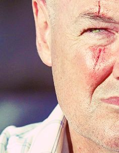 John Locke <---- pretty sure he had that scar for like 2-3 seasons :)