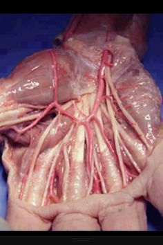 what your hand looks like after the layer of skin is removed...no chicken for me for a while