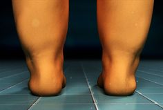 """Combating """"Cankles"""": Are your shapeless ankles making your legs look like tree trunks? Discover the potential culprits that may create dreaded """"cankles"""" and what actions can be taken for a more contoured appearance."""