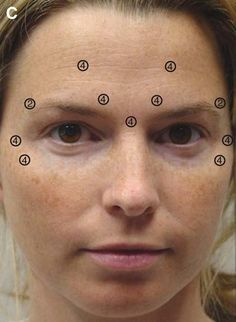 Download scientific diagram | (A) Patient before Botox injection of the forehead, glabella, and periorbital region. (B) Same patient 6 weeks after Botox injection and a topical skin care regimen shows nice elevation of the brows into a more aesthetic position. (C) Injection sites and doses (U) of Botox used.  from publication: Obagi, S. Correction of Surface Skin Deformities: Botox, Fillers, Lasers & Non-Laser Light Sources. Atlas Oral Maxillofac Surg Clin North Am. 2004 Sep;12(2):271-97… Botox Forehead, Botox Face, Botox Fillers, Dermal Fillers, Botox Results, Face Injections, Botox Injection Sites, Botox Brow Lift, Mascara Hacks