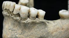 Article:  Archaeologists are studying tartar buildup of ancient skeletons and using DNA sequencing of that tartar to investigate the long-term evolutionary history of human health and disease ...