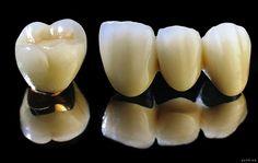 Giải đáp: Răng sứ titan bao nhiêu tiền là hợp lý?