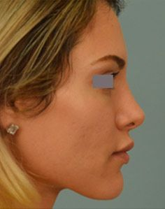 View before and after photos of the rhinoplasty procedure performed by Dr. Vladimir Grigoryants in Los Angeles and Beverly Hills. Beverly Hills, Upturned Nose, Pretty Nose, Rhinoplasty Before And After, Straight Nose, Face Profile, Nose Shapes, Button Nose, Nose Surgery