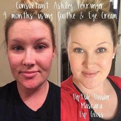 SOOTHE and Eye Cream