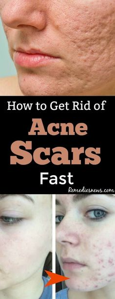How to Get Rid of Acne Scars Best home remedies for acne scars treatment at home. Try apple cider vinegar lemon juice raw honey potatoes essential oils raw tomatoes and more to remove acne deep scars overnight. Scar Remedies, Home Remedies For Acne, Skin Care Remedies, Health Remedies, Herbal Remedies, Natural Remedies, Pimples Remedies, Anxiety Remedies, Cold Remedies