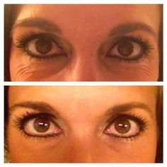 Before and After shots with Rodan and Fields Skincare.  This is why I LOVE these products! www.page.myrandf.com