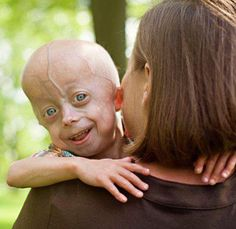 Hi, My name is Cameron. I am 5 years old and I have a condition called Progeria. It makes my body age faster than it should but it doesn't stop me from doing all the things I love to do. I am just like any other 5 year old, but I am truly special.