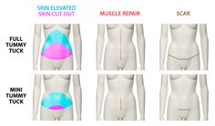 """Tummy Tuck vs. Mini Tummy Tuck – Which is right for you? """"There are variations in technique between a tummy tuck and mini tummy tuck and each plastic surgeon you ask may have a slightly different opinion, but here are some basics..."""""""
