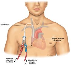 Dialysis catheter placement ... kind of freaks me out about how it's in the heart.