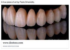 Denteez. The Home Of Dentistry. www.denteez.com #Dentistry #Professional #Networking #Denteez