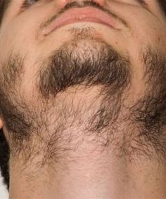 Do you suffer from a patchy beard? With a little trimming and the right beard care products, you can fix those patches and grow a full, healthy beard. Learn more about how to fill in patchiness in facial hair with… Continue Reading → Grow A Thicker Beard, Thin Beard, Bald With Beard, Grow A Beard, Short Beard, Beard Growth Tips, Beard Tips, Growing Facial Hair, Facial Hair Growth