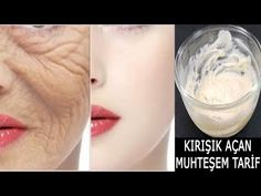 Only Apply 2 Times in 7 Days Stop Aging Open Wrinkles - Rejuvenate Your Skin - Beauty Care Beauty Care, Beauty Skin, Hair Beauty, Skins Minecraft, Back Up, Back Acne Treatment, Face Mapping, Acne Causes, Wrinkled Skin