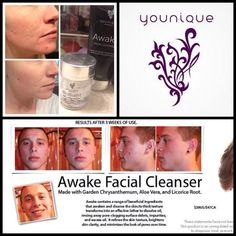 Do you or someone you know suffer from acne??? People are seeing amazing results by using Younique Awake face wash and moisturizing with Younique Brilliant! Visit this site to learn more. https://www.youniqueproducts.com/younique4u/products#.U56CIfldWSp