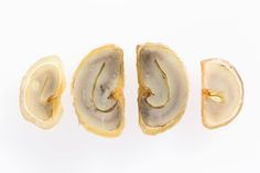 Parchment-Bean with mucilage (slides)