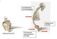 Pelvic floor exercises for a pelvis that is too tight. Improve range of motion and alignment Pelvis Anatomy, Sway Back, Pelvic Tilt, Pelvic Floor Exercises, Massage Benefits, Restorative Yoga, Low Back Pain, Hip Workout, Midwifery