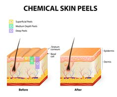 Discover the different types of chemical peels for your skin type. From light /superficial to medium-depth to deep peels, find one to help treat your skin. Chemisches Peeling, Skin Peeling On Face, Anti Aging Skin Care, Natural Skin Care, Chemical Skin Peel, Facial Scars, Wrinkle Remover, How To Treat Acne, Skin Treatments