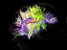 Brain Wiring Mapped Via Super Charged MRI [Video]