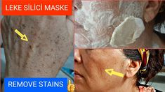 ANNEM 10 YAŞ DAHA GENÇ GÖRÜNÜYOR😲LEKE SİLİCİ PATATES MASKESİ İLE LEKELERDEN KURTUL CİLDİNİ GER - YouTube Beauty Skin, Health And Beauty, Hair Beauty, Natural Face Cleanser, Youtube, Tips Belleza, Face And Body, Baking Soda, Beauty Hacks