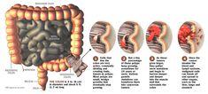 Colon cancer – Don't ignore the symptoms