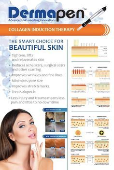 Dermapen/Microneedling is great for Acne Scars Botox Fillers, Dermal Fillers, Facial Treatment, Skin Treatments, Dermapen Microneedling, Skin Needling, Facial Aesthetics, Face Care Routine, Beauty Clinic