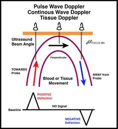 Ultrasound School, Ultrasound Physics, Ultrasound Technician, Tissue Types, Sound Waves, Make It Simple, Medical, Positivity, Veterinary Medicine