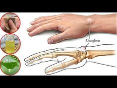 Ganglion cysts are lumps that grow along the joints or tendons of our wrists or hands, and as well as on the ankles and feet. Fortunately, these cysts are non-cancerous . Ganglion, Black Tea Bags, Fresh Aloe Vera, Muscle Weakness, Anti Inflammatory Recipes, Water Balloons, Round Bag, Natural Home Remedies, Health Facts