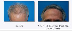 2800 Grafts - Hair Transplant Before & After by Dr. John Frank.