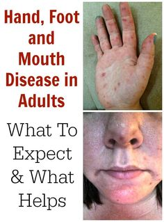 Hand, Foot and Mouth Disease in Adults. Recently my daughter (aged contracted Hand, Foot and Mouth Disease. If you are lucky to have never heard of HFMD Hand And Mouth Disease, Hand Foot And Mouth, Mouth Sores, Sick Baby, Disease Symptoms, Skin Care Remedies, Natural Remedies, Health, Hemp