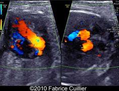 Pulmonary atresia with tricuspid regurgitation - prenatal ultrasound detection