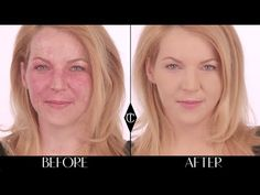 How to cover up birthmarks: Charlotte Tilbury Magic Foundation Makeup Tutorials - YouTube #charlottetilbury