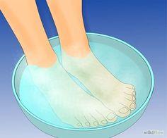 How to Get Rid of Plantar Warts (Verrucas) Planter Warts Remedies, Warts Remedy, Toenail Fungus Remedies, Apple Cider Vinegar Cellulite, Apple Cider Vinegar For Skin, Foot Warts, Warts On Hands, Moles On Face, Skin Moles
