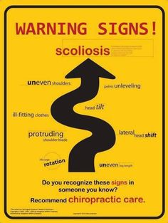 Warning Signs of Scoliosis (and why Chiropractic Care is so important)- The Joint Carmel, IN Benefits Of Chiropractic Care, Family Chiropractic, Chiropractic Wellness, Chiropractic Quotes, Chiropractic Office, Scoliosis Surgery, Scoliosis Exercises, Scoliosis Quotes, Scoliosis Tattoo