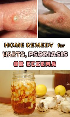 One of the most beneficial ingredient for your health has proved to be garlic. It has many properties and can help you with various health problems among which we remind warts, eczema or psoriasis and rashes or wounds. You may think that this is another a