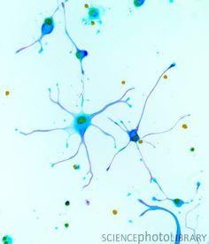"""Foetal brain cells, light micrograph, mais l'histoire ne dit pas First Brain ou Second Brain : 1er et 2 eme  cerveau .Mais ne dit on pas que le second cerveau est en fait le 1er et il se prolonge apres, en formant une extension """"cephalique"""" .Voir videos dans """"regimeefficace.net"""""""