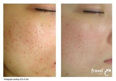The 1550 setting on the Fraxel Dual laser can also be used for acne scars, with a series of 3-6 treatments we have made great strides in diminishing the look of all types of scars.