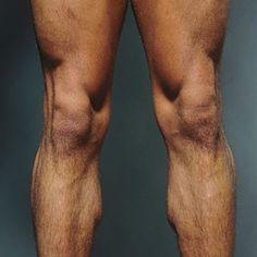 Build better knees