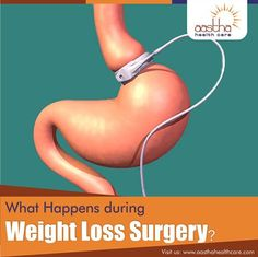 """Weight loss surgery works in three basic ways: -Restricting how much food your stomach can hold at any time. This is ""Restrictive"" weight loss surgery. -Preventing your digestive system from absorbing all the nutrition in the food you eat. This is """"malabsorptive"""" surgery. -A combination of these two ways.""  Visit us: www.aasthahealthcare.com  #Weightloss #Weightlosssurgery #Surgery #Stomach #Obesity #Bariatricsurgery #Bariatric #Nutritions"