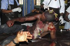 all about Nigeria in picture | victim of a bombing at Shalom Church awaits treatment in a hospital ...