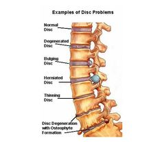 The Difference Between a Bulging Disc and a Herniated Disc