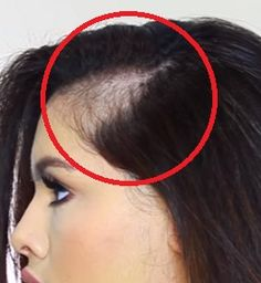 Regrow Hair, Make Up, Health Fitness, Hair Beauty, Hair Styles, Tattoos, Per Diem, Syrup, Maquillaje