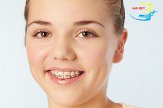 điều trị răng thưa bằng phương pháp niềng răng