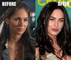 Megan Fox Plastic Surgery rumors include a nose job, cheek fillers, lip fillers, boob job, and Botox. We will be walking you through some plastic surgery before and after photos so that you can decide Megan Fox Plastic Surgery, Plastic Surgery Photos, Celebrity Plastic Surgery, Megan Fox Lips, Megan Fox Body, Megan Fox No Makeup, Megan Fox Style, Botox Brow Lift, Botox Lips