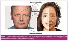 The 12-point Revitalization Guide to Pan-facial Application of Injectable Fillers in Older Women | JCAD | The Journal of Clinical and Aesthetic Dermatology Botox Injection Sites, Botox Injections, Facial Fillers, Dermal Fillers, Hyaluronic Acid Fillers, Tear Trough, Aesthetic Dermatology, Nasolabial Folds, Facial Rejuvenation