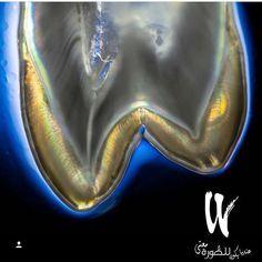 Follow DR. @drdeaguiar #restorativedentistry#veneers#dentist#dentistry#estheticdentistry#composites#3M#ivoclair#tokuyama#shofo#clinic#invasiline#surgery#dentalsurgery#dentalcollege#sirona#periodontics#prosthodontics#endodontics#pedodontist#odontologia#odonto#dentalsurgery#gingivectomy#dentalphotography