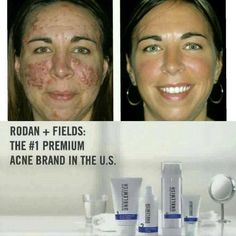 Acne can be a painful experience, inside and out. Try our #1 premium acne treatment in the U.S. and you will see and feel the difference...guaranteed!! #RFWorks #EndTheCycle